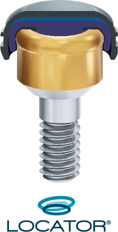 Zest LOCATOR Implant Attachment System