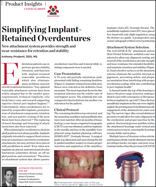 Simplifying Implant-Retained Overdentures